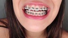 Metal Mouth At 8 Weeks