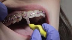 Gorgeous Mouth Cleaning With Metal Mouth