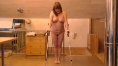 Walking On Crutches Part2-swinging Both Legs Together Like Wearing Metal Mouth