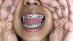 Metal Mouth Elastics